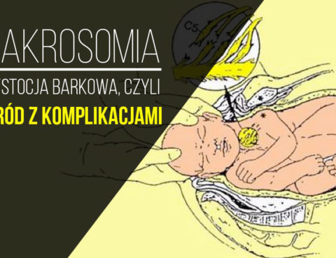 makrosomia
